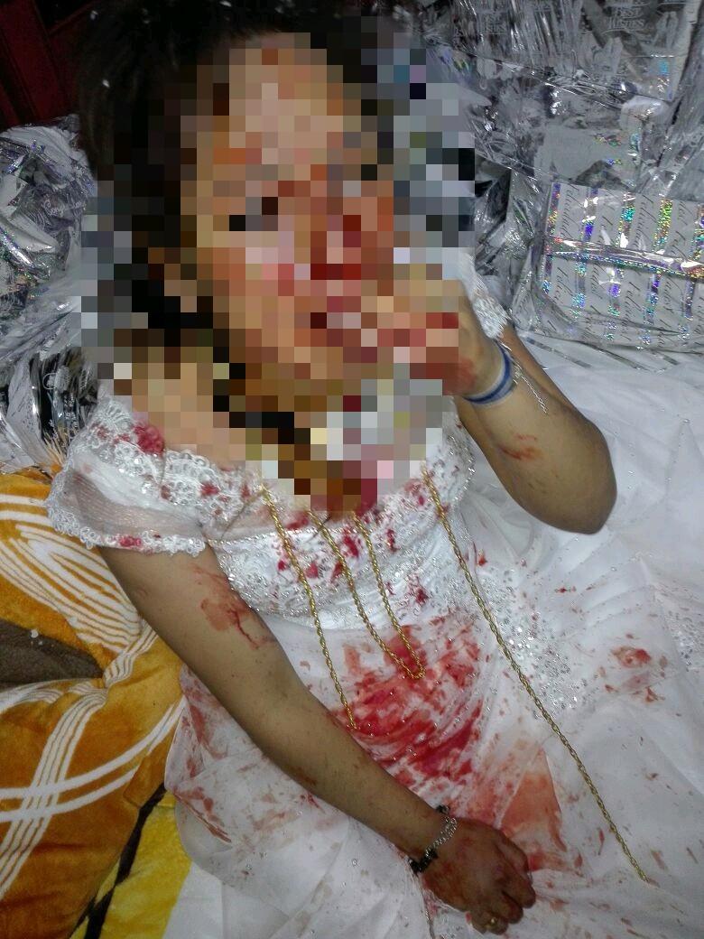 Novia fue golpeada por su marido en la noche de bodas