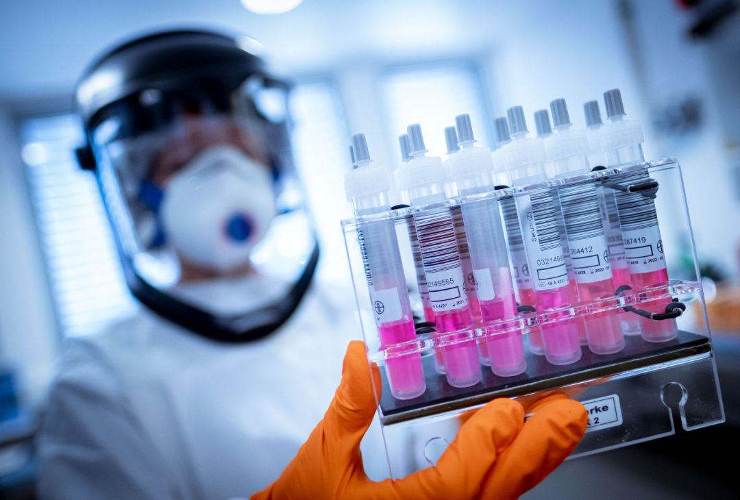 Oxford anuncia que los primeros resultados de su vacuna contra el COVID-19 son positivos
