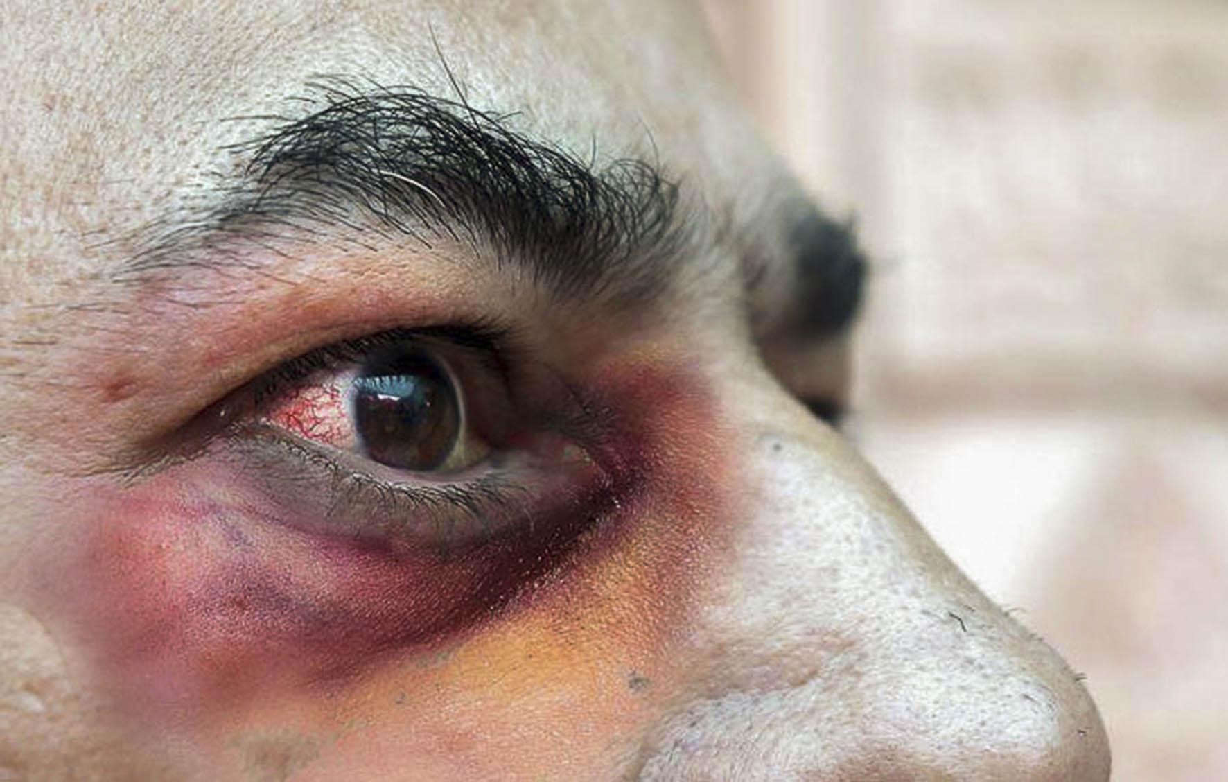 Hongo negro: 8 síntomas clave para detectar la infección y qué órganos afecta